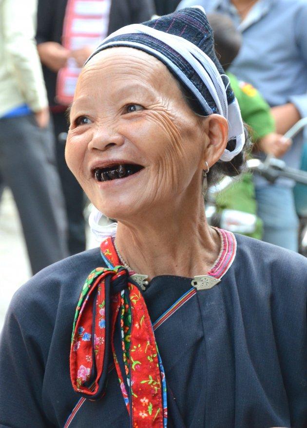 Ze lacht haar zwarte tanden bloot.