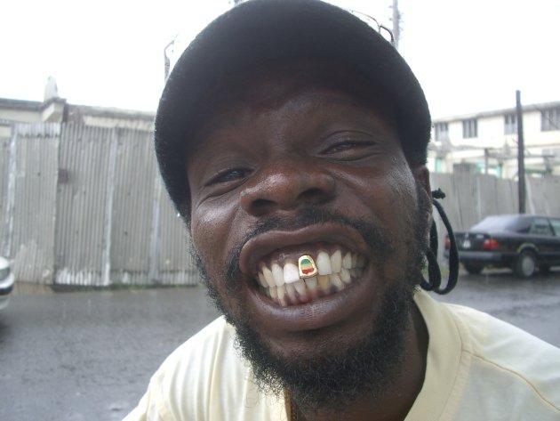 Rasta tand