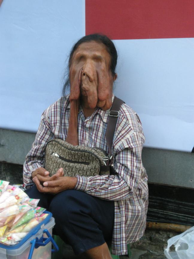 arm Bangkok