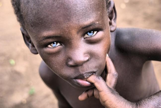 Rare eyes